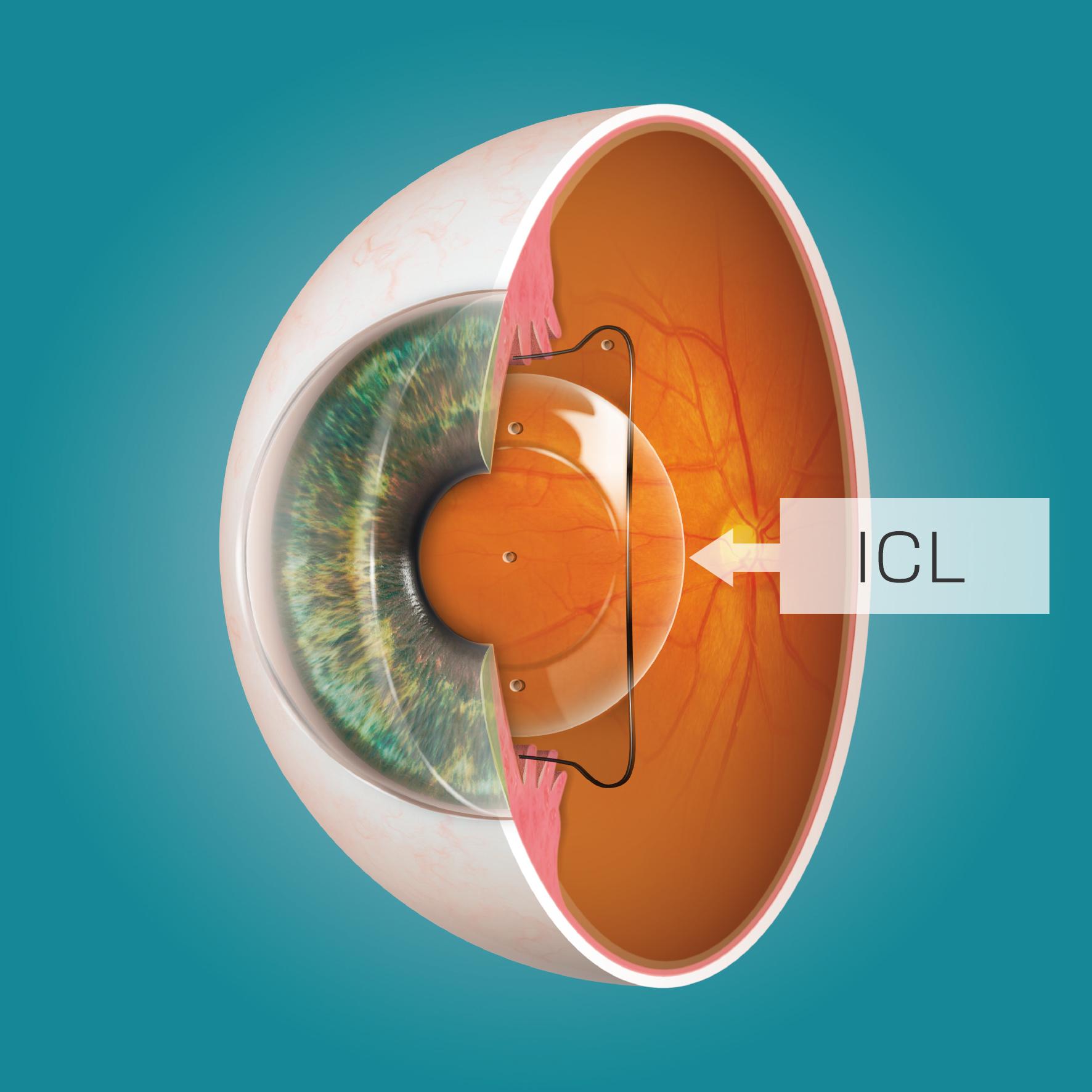 眼内コンタクトレンズ(ICL)
